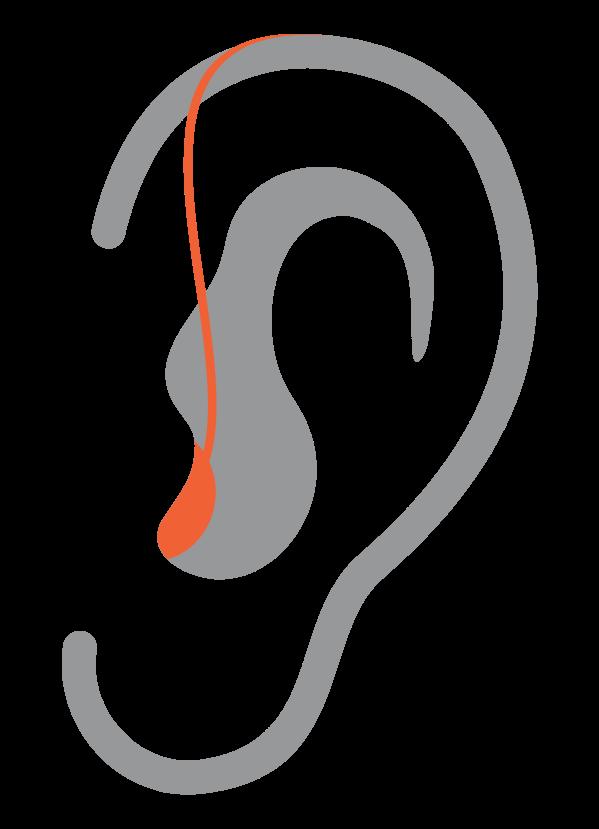 ric-orelha